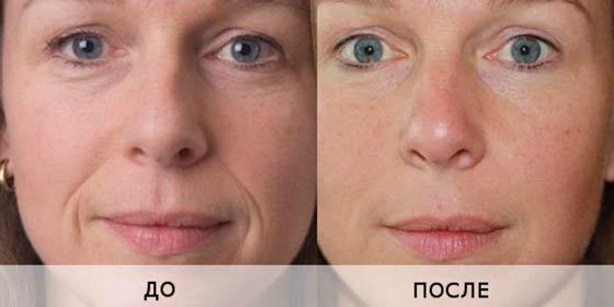 Биоревитализация - До и после процедуры