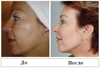 fotofacial-before-after4
